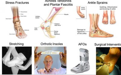 "JI mini-workshop series: ""systematic approach for foot and ankle injuries"""